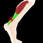 muscle mollet tendon courbature
