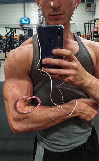 biceps court